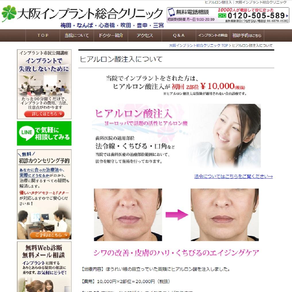 大阪で安くて人気の大阪インプラント総合クリニックのヒアルロン酸注射